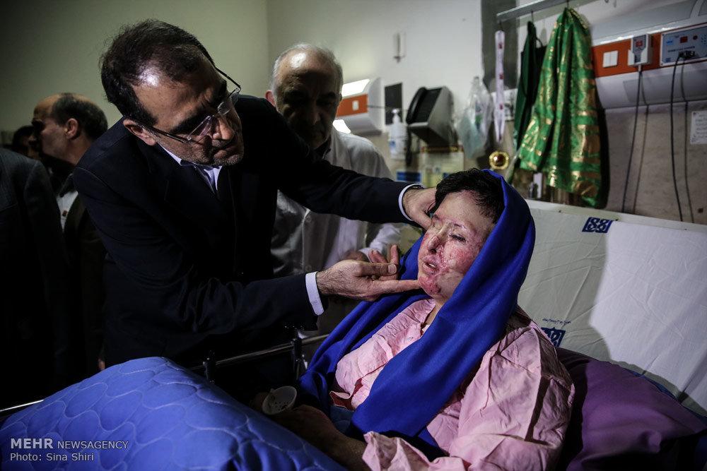 عکس اسید پاشی بیوگرافی سهیلا جورکش اسید پاشی اصفهان اسید پاشی