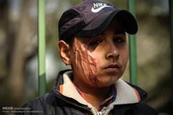 پرونده اسید سوزی از نوع دوم/ تنها آرزوی علی اکبر 11 ساله
