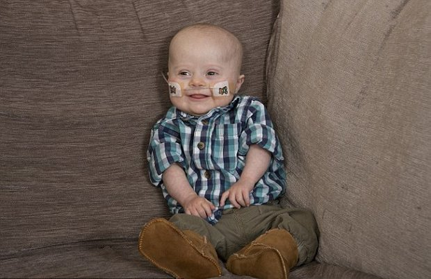 25C38DBB00000578-2974833-All_better_The_baby_recovered_so_well_his_parents_were_able_to_t-a-6_1425252956653.jpg