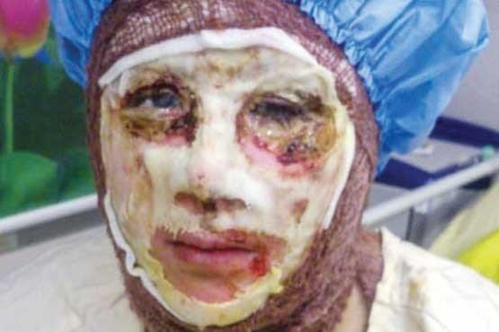 بهترین چهره سال بدترین چهره سال اسید پاشی اصفهان ابوبکر البغدادی