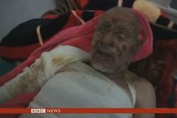 الجرائم السعودية في اليمن إرهاب مستمر يومياً