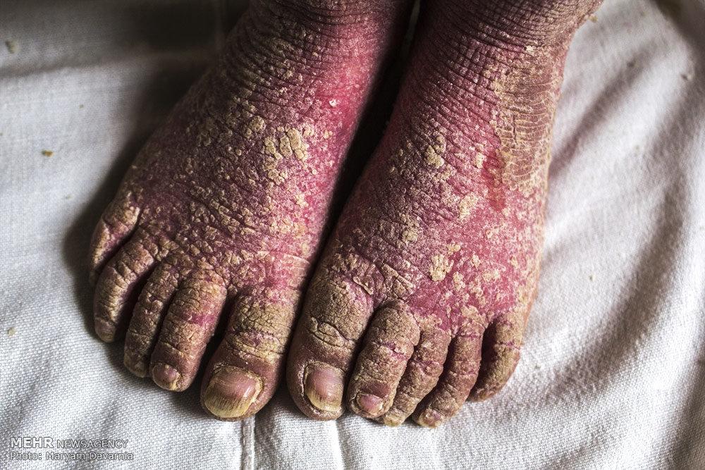 بیماری پوستی نرگس رسولی