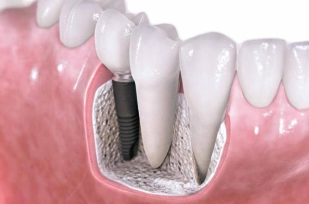 طراحی ایمپلنت دندانی با توجه به ابعاد استخوانی هر فرد