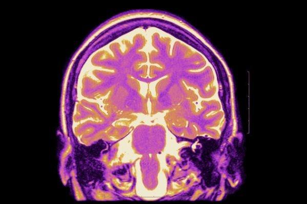 %name تشخیص شخصیت از روی واکنش مغز به کلمات