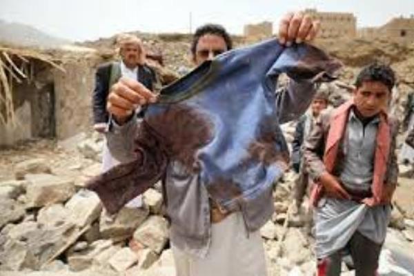 سقوط أكثر من 11 ألف شهيد  وجريح في العدوان السعودي على اليمن