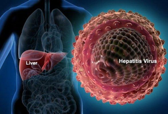 هرآنچه باید در مورد هپاتیت بدانیم/ راه های پیشگیری از ابتلا
