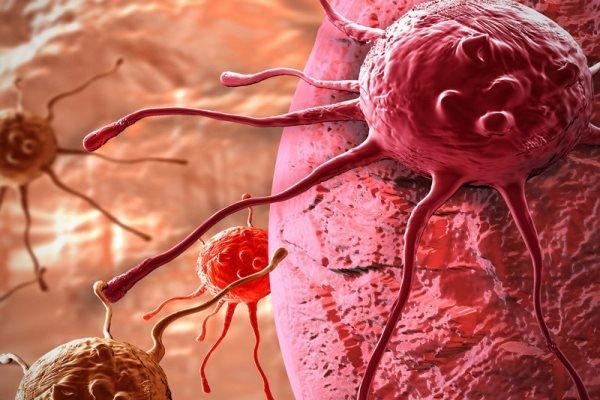 سلول سرطانی