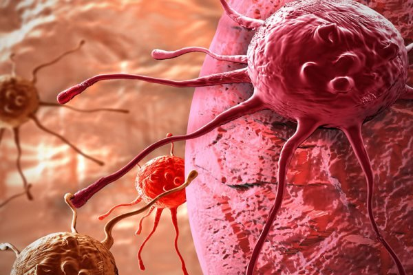 Iran develops nanotechnology to fight gastric cancer cells