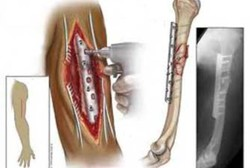 فناوری ساخت فولادهای پزشکی برای ایمپلنت بومی شد