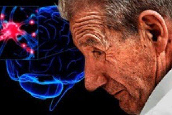 مهم ترین عامل خطر ابتلا به پارکینسون