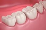 ذخیره سازی پالت دندان از طریق ریشه دندان  شیری انجام می شود