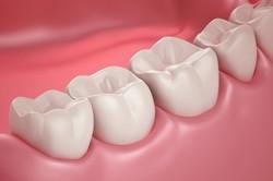 کشتن باکتری ها و بازسازی پالپ دندان با سلول های بنیادی