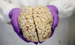 Iran joins other countries in establishing 'brain bank'
