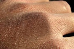 راه های پیشگیری از خشکی پوست را بشناسید