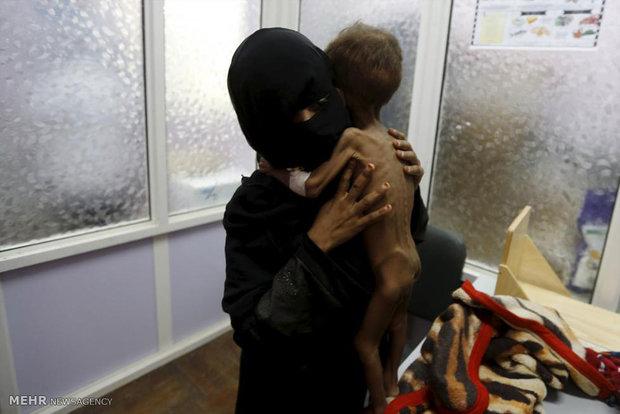 گرسنگی در یمن
