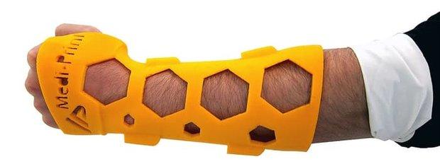 قالبهای چاپی برای گچ گرفتن عضو شکسته