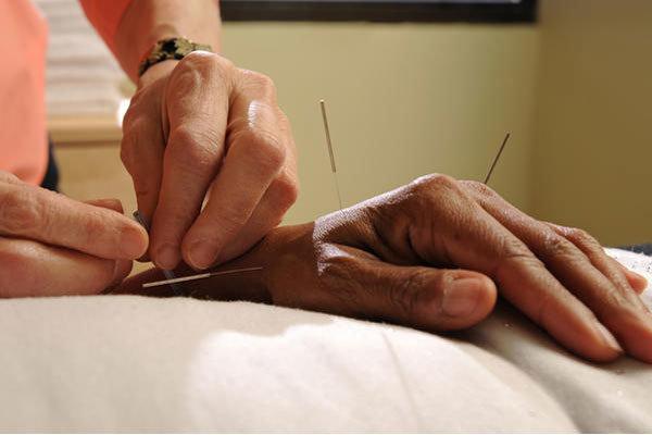 کاهش عوارض پرتودرمانی در بیماران سرطانی با طب سوزنی