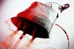 ارتباط تزریق خون جوان با پیشگیری از بیماری های افزایش سن