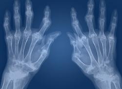 09- rheumatoid-arthritis pic.jpg