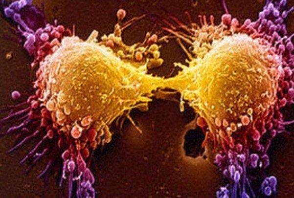 استفاده از Â«تستوسترون» برای درمان موفقیت آمیز سرطان