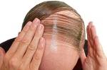 رفع ریزش مو به کمک سلول های بنیادی