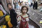 ۱۱میلیون کودک یمنی به دلیل جنگ نیازمند کمک هستند