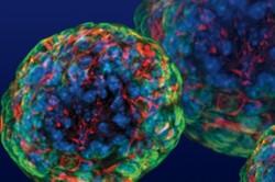 دلیل مقاومت سلول های سرطانی پروستات به درمان کشف شد