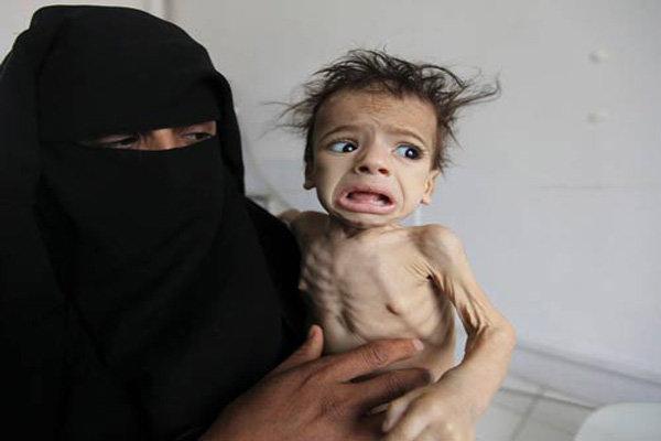 الاندبندنت: اليمنيون يتعرضون لتجويع متعمد يجري بتواطؤ بريطاني
