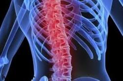 بومیسازی فناوری پیشرفته رابط عصب و عضله برای درمان آسیب نخاعی