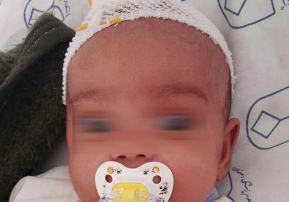 کودک آزاری منجر به ضربه مغزی کودک سه ماهه شد