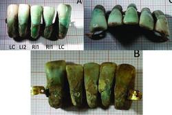 دندان باستانی