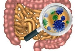 باکتری های روده روند بیماری ALS را کُند می کنند