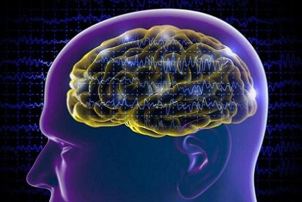 Iran builds brain stimulator tDCS device