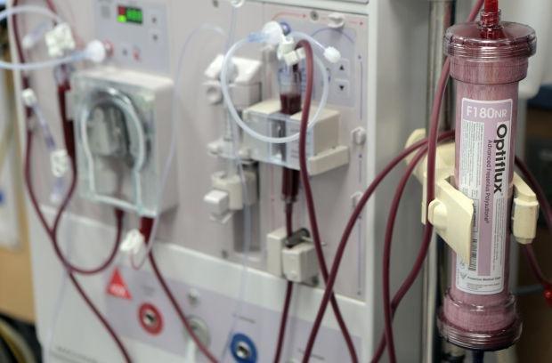 صرفهجویی سالانه ۲ میلیون یورو با تامین فیبرهای دیالیز جدید