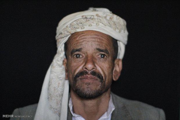 وضعیت مشقت بار مردم یمن