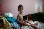 اليمن والطفولة المفقودة