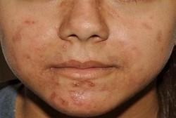 داروی درمان آکنه های شدید موجب تغییر میکروبیوم پوست می شود