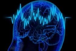 Tehran to hold 1st intl. advanced workshop on neuroscience