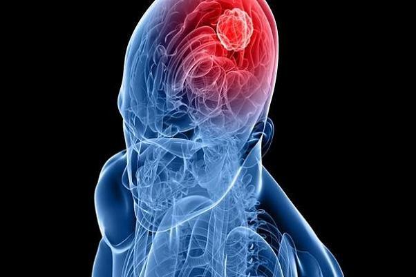 بازماندگان سرطان با ریسک متاستاز مغز روبرو هستند