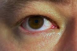 ویروس هپاتیت B موجب از بین رفتن بینایی می شود