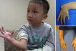 درمان دست معلول کودک با استخوان پا
