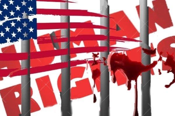 حقوق بشر/ آمریکا