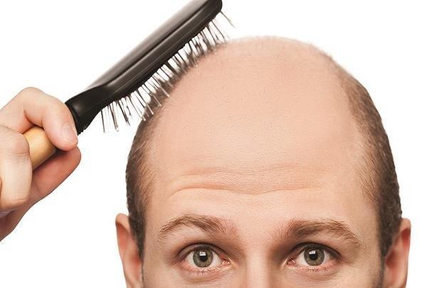 کنترل ریزش ارثی مو باید از نوجوانی آغاز شود