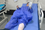 درمان مجروحان جنگی عراق در ایران/استقبال بیماران خارجی برای درمان در ایران
