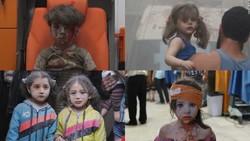 Trauma of children in Syria's war