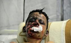 چهارشنبه آخر سال در زنجان ۷۲ مصدوم برجای گذاشت