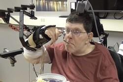 حرکت دستان یک معلول با کاشت تراشه ای در مغز