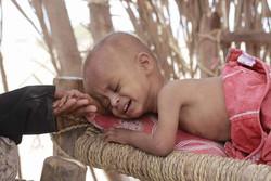 سازمان بهداشت جهانی از افزایش قربانیان وبا در یمن خبر داد