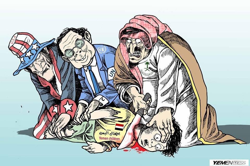 اطفال اليمن 2