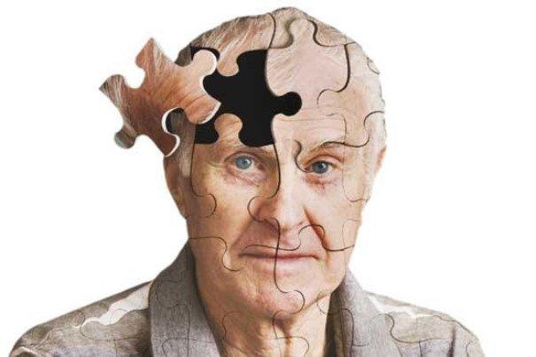 التهاب عصبی در بیماران آلزایمری نشان داده شد
